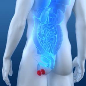Câncer de testículo (CT)